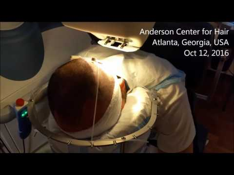 Anderson Center for Hair - latest upgrades to our ARTAS Robotic Hair Transplant system