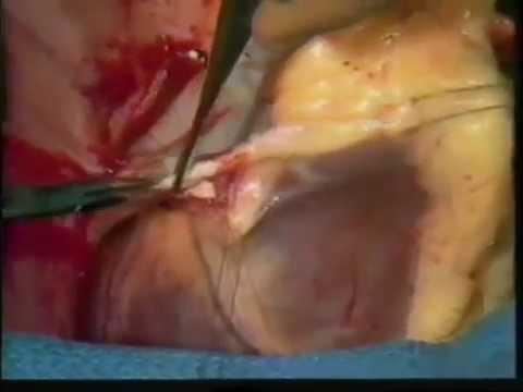 สิ่งที่ดำเนินงานทำอย่างไรกับเส้นเลือดขอดของขา