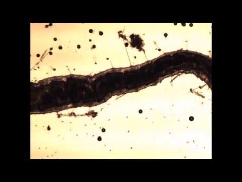 Utero di parassiti di argilla