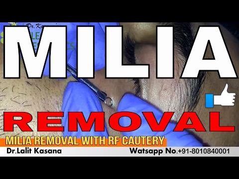 I gemorroyny annodano il sollievo - Cryotherapy allatto di cura di emorroidi