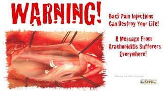 Epidural Steroid Injections / FDA Issues Serious MedWatch Alert! - HD