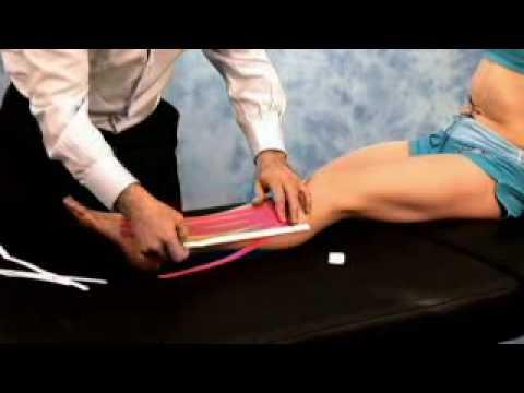 Legamento esterna del ginocchio