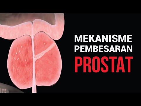 Az aloe terápiás tulajdonságai a prosztatitisben