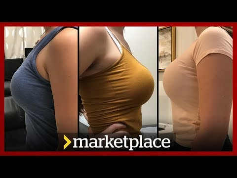 Buying breast implants: Hidden camera investigation (Marketplace)