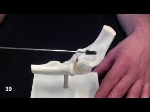 Behandlung von Kniegelenk Osteoarthrose 2 Grad Volksmittel