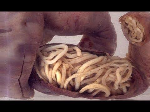 Le type les arthropodes les parasites