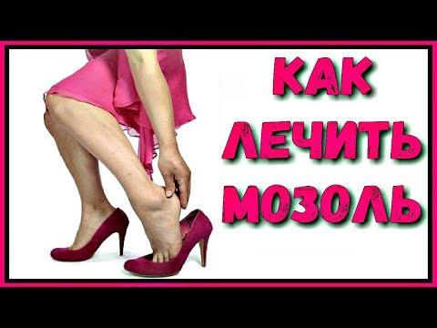 Советская актриса с веснушками