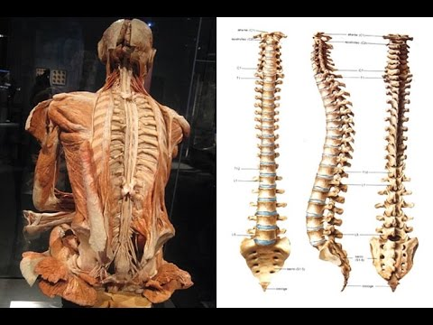 Guarire scoliosis di reparto di petto