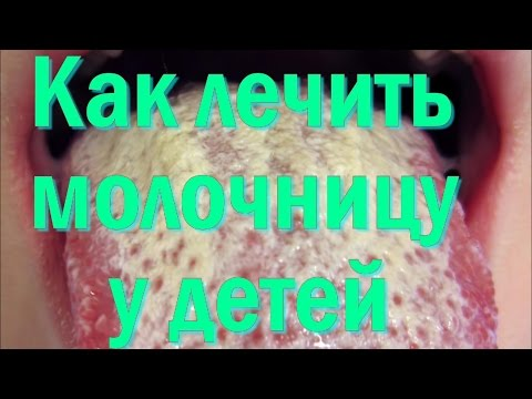 Как лечить молочницу у детей в полости рта(кандидоз)