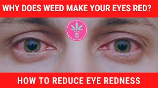 Why Does Weed Make Your Eyes Red? (And What You Can Do About It)