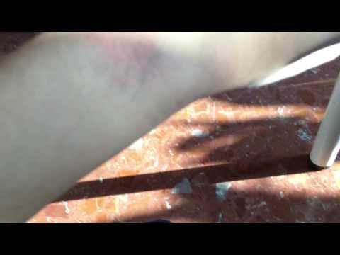 Risposte di fundizol allatto di trattamento di un fungo di ununghia di una targa