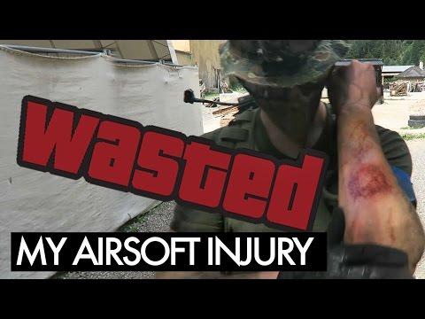 Airsoftová zranění