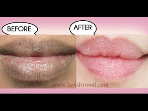 ", title : 'How To Get Natural Pink Lips FAST Using Only 2 INGREDIENTS (""Home Remedies"")'"