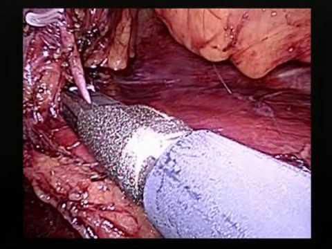 Laparoskopowe pobranie nerki do przeszczepu