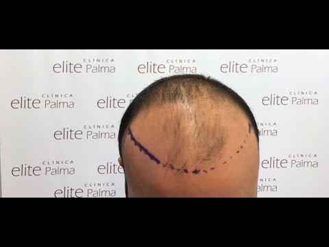 Das Fallen des Haares des Grundes und die Behandlung bei den Frauen