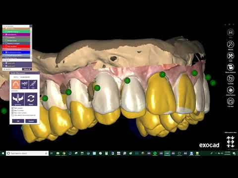 Download Exocad Video Tutorial Basic Designing A Removable Partial