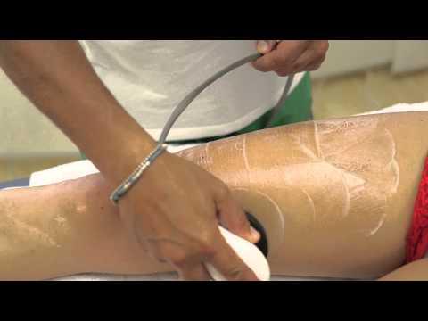 Uno strumento efficace nella artrosi del ginocchio