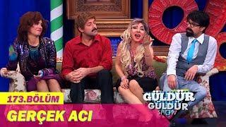 Güldür Güldür Show 173.Bölüm   Yaralı Show Gerçek Acı