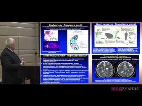 Особенности поражения нервной системы при нейроинфекциях