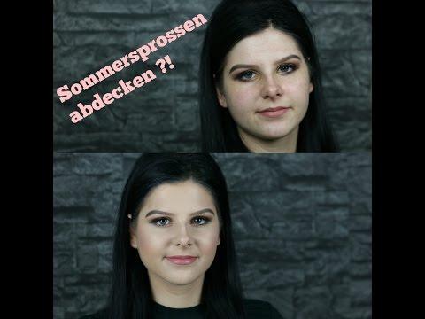 Die Bronzekrankheit die Pigmentation der Haut