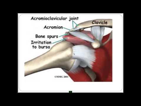 Травма вертлужной впадины тазобедренный сустав