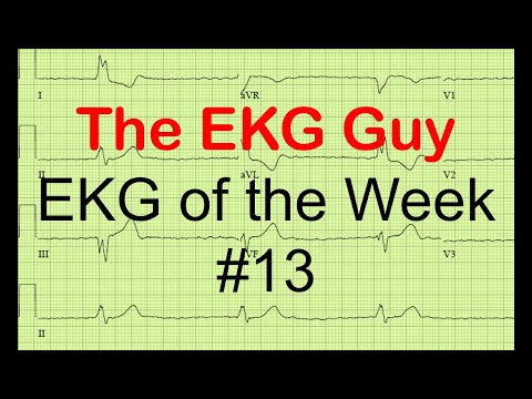 EKG of the Week #13