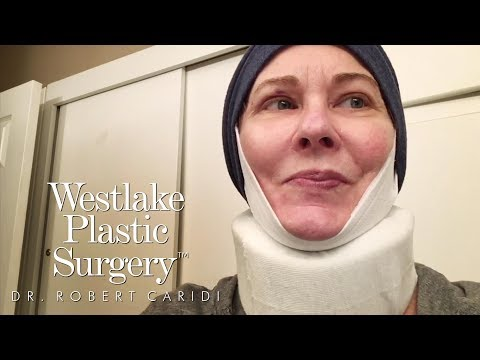 Procedure Video: Facelift, Neck Lift And Blepharoplasty  Before and After