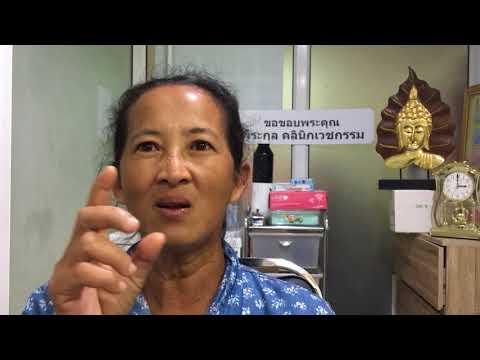 จาระบีมาตรฐานสำหรับโรคสะเก็ดเงิน