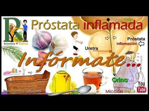 Uretritis la prostatitis en los hombres