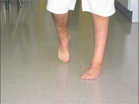 El medio de potlivosti de los pies y el hongo la farmacia