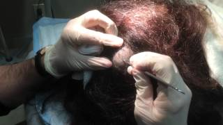 Pilar Cyst Removal on the Scalp