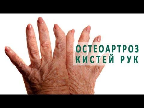 Мазь от боли в суставах и мышцах отзывы