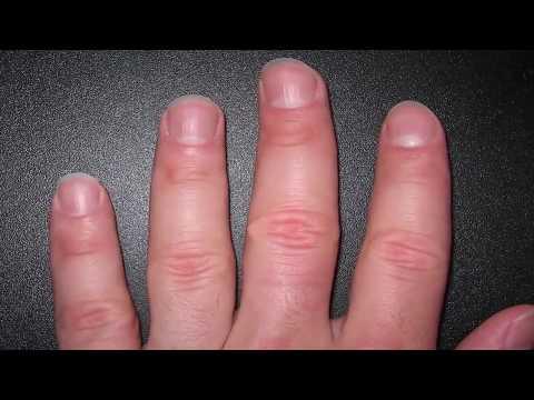 Le microorganisme végétal des ongles chez les enfants de 5 années