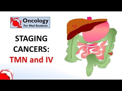 Hepatocellular cancer screening