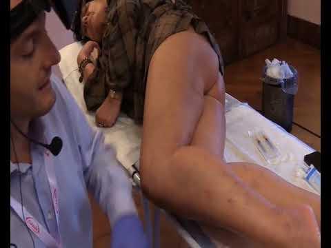 Diabete e thrombophlebitis