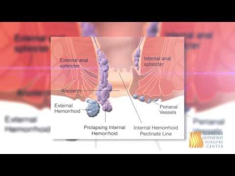 Papillomavirus langue homme