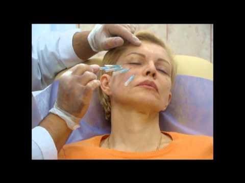 Атопический дерматит отек глаз