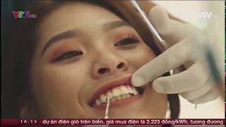Bọc răng sứ, dán sứ Veneer- Các phương pháp làm răng thẩm mỹ