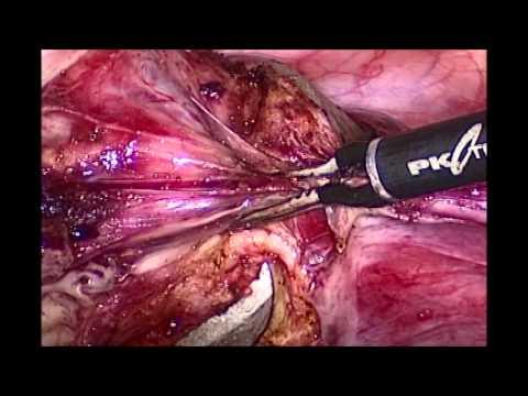 Diabetesbehandlung fetopathy