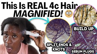 How 4c Natural Hair Looks Under A Microscope: Moisturized, Buildup, & Cleansed Absolutely Amazing!