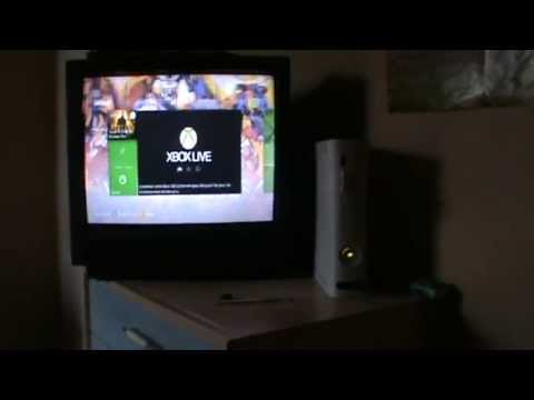comment augmenter mémoire xbox 360