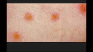 Chiggers, simple facts You should know