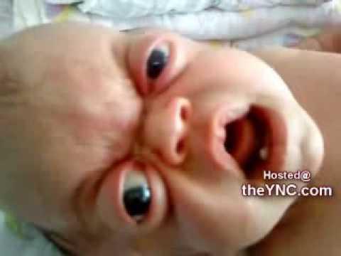 Bizarre Baby has Extremely Large Eyes