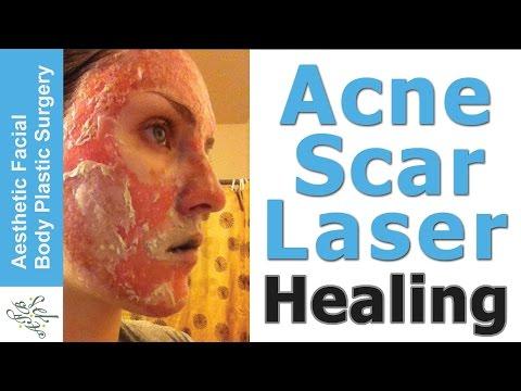 Makeup wrinkles sa ilalim ng mga mata