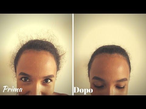 Perché i capelli abbandonano e la forfora presa