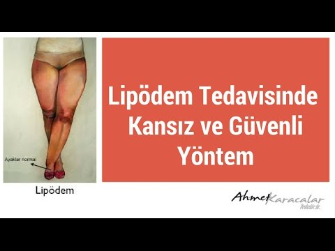 Lipödem Tedavisinde Kansız ve Güvenli Yöntem :  Superdry Liposuction - Ahmet Karacalar Prof. Dr.