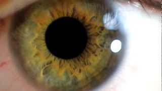 Close up eye and pupil dilation
