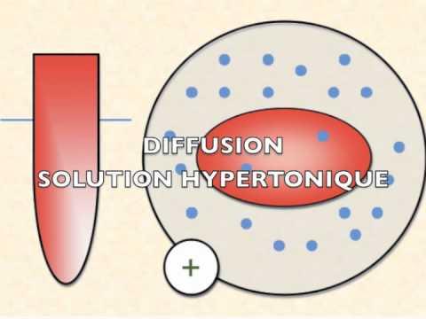 Sauter la pression est de lhypertension