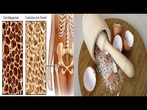 Dispositivos para el desarrollo de la articulación de la cadera