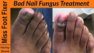 Bad toenail Fungus Treatment - How to cut fungal nails?